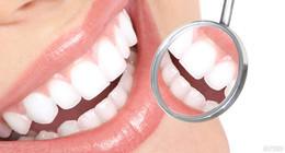 Скидка 30% на профессиональную гигиену полости рта