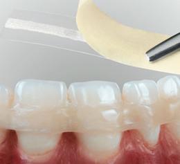 Скидка 10% на шинирование зубов стекловолокном