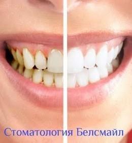 Скидка 70% на профгигиену полости рта