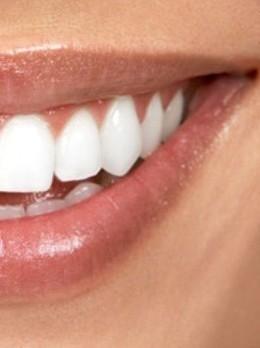 Скидка 25% на лазерное отбеливание зубов