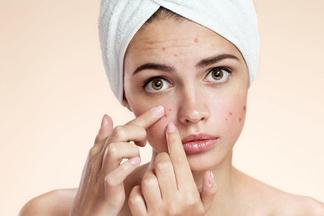 Что такое «бывшая жирная кожа»? Врач-дерматологпро 5раздражающих проблем кожилица
